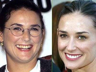 ฟันสวยเปลี่ยนชีวิต...มาดู ดารา Hollywood ทำ Veneer กันเถอะ