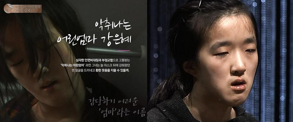 LET ME IN : แปลงโฉม คังอึนฮเย คุณแม่วัยทีนลูก 2 ที่มีเนื้องอกในปาก กลิ่นปากเหม็น จนสามีต้องขอเลิก