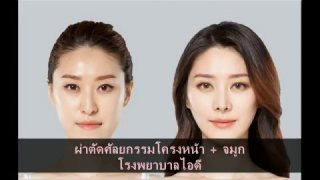 รีวิวศัลยกรรมเกาหลี ศัลยกรรมขากรรไกร+วีไลน์+จมูก
