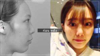 รีวิวศัลยกรรมเกาหลี  _ ศัลยกรรมตา จมูกและเสริมคาง อันโซยอง