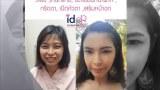 [Review] ศัลยกรรมวีไลน์ ,โหนกแก้ม, ตา, ฉีดไขมันหน้าผาก, เสริมหน้าอก โดยคุณ Suvapak