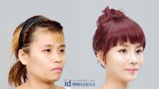 เรทมีอิน 4 : ตอนพิเศษ,เปลี่ยนทอม..ให้เป็นเธอ ศัลยกรรมเกาหลี