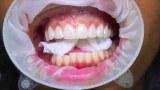 วีเนียร์ (Veneers) ทำฟันสวยจนมงลงหัว