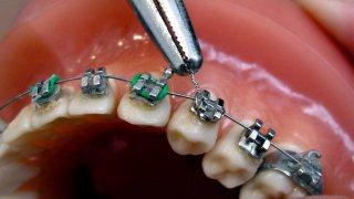 จัดฟันด้วยลวดลิเกเจอร์ (ligature wire)
