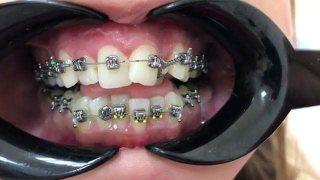 ถามคนจัดฟัน สงสัยไหม ทำไมหมอติดแบร็คเก็ตให้สูงบ้าง ต่ำบ้าง ??