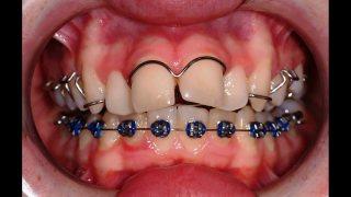 จัดฟันให้เรียงสวย ทำอย่างไร?