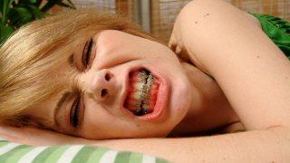 ชีวิตคนจัดฟันนี่ลำบากนะครับ คนจัดฟันเท่านั้นที่เข้าใจ
