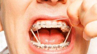 การเกี่ยวยางจัดฟัน เปรียบเหมือนการเข็นครกขึ้นภูเขา