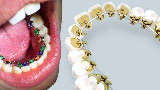 จัดฟันด้านใน ต้องดู! (Braces time lapse) นี่คือ การจัดฟันด้านใน เป็นการจัดฟันที่มองไม่เห็นเครื่องมือ