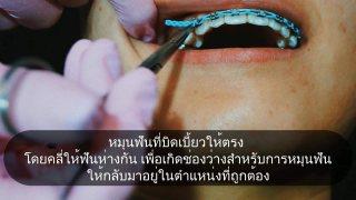 จัดฟัน ทำไมฟันยิ่งยื่น ยิ่งเหยิน ยิ่งห่าง ?
