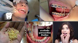 สอน เกี่ยวยางจัดฟันเป็นรูปสามเหลี่ยม สี่เหลี่ยม (Triangle & Box elastics)