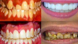 จัดฟัน ที่แท้ฟันเคลื่อนเช่นนี้เอง! Braces Time Lapse