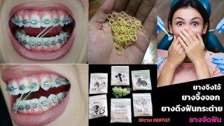 จัดฟัน ยางจิ้งจอก ยางดึงฟันกระต่าย ยางจิงโจ้จัดฟัน