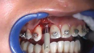 จัดฟันใส่รากฟันเทียม 18+